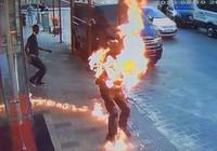 Kardeşinin üzerine tiner dökerek yaktı