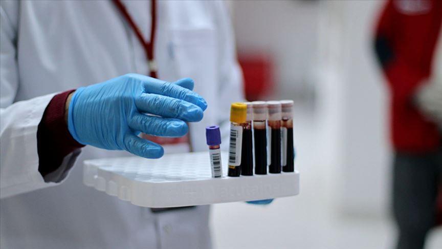 Varank duyurdu: Sanayide antikor testleri 13 ilde başlıyor - Sayfa 2