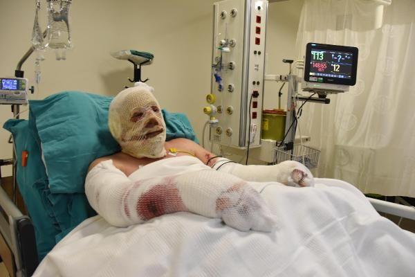 Alevlerin arasında kalıp yaralanan ormancı, 43 gün sonra taburcu oldu - Sayfa 4