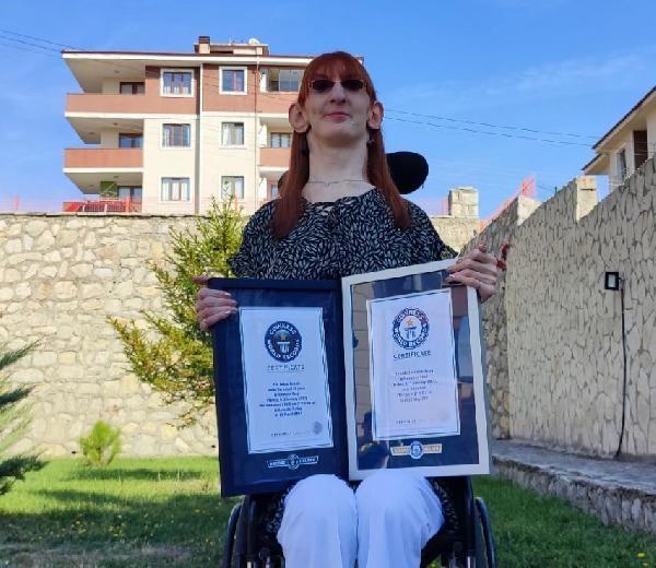 Dünyanın en uzun kadını Rumeysa: Farklı olmak kötü bir şey değil - Sayfa 4