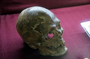5 bin yıl önce beyin ameliyatı