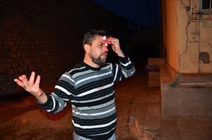 Zonguldak'ta Iraklının kafasında şişe kırdılar