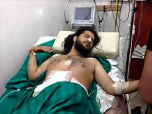 Suriye'de yaralanan Reuters foto muhabiri, Adana'da ameliyata alındı