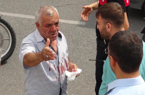 Şanlıurfa'da kavga: 1 yaralı, 4 gözaltı