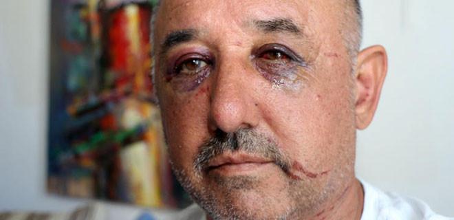 Hayvansever çifti dövdüğü iddia edilen adam suçlamaları reddetti!