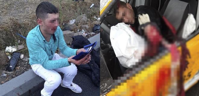 Kayseri'de polisten kaçan askerin kolu parçalandı!