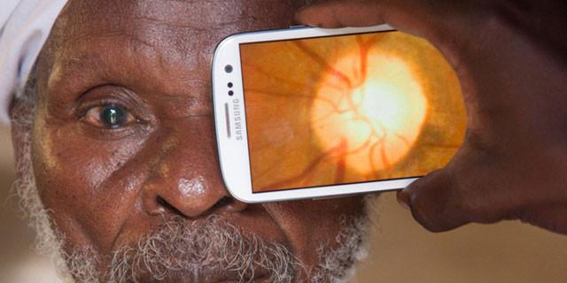 Akıllı telefonla göz muayenesi