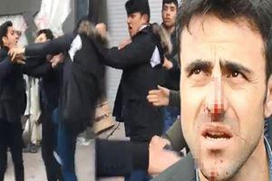 İstanbul Esenyurt'ta seyyar satıcı zabıtanın burnunu kırdı